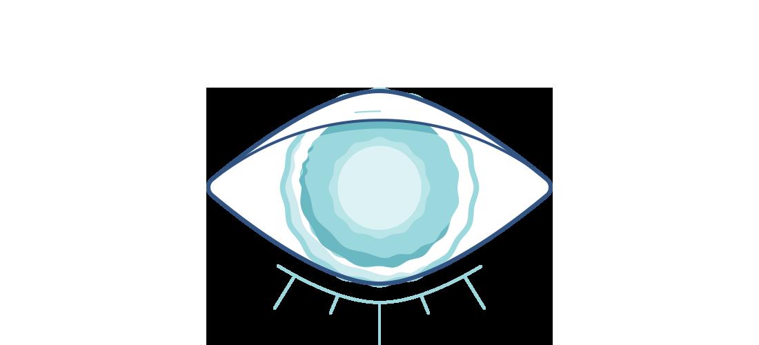 Cataracts Illustration.