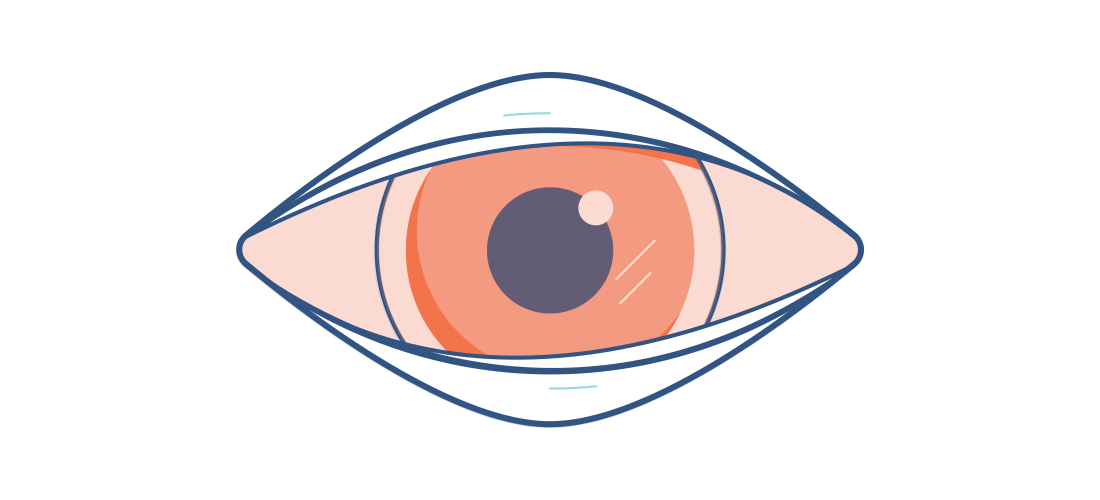 Pink eye illustration.