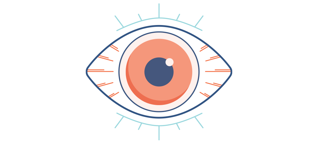 Dry Eye Illustration