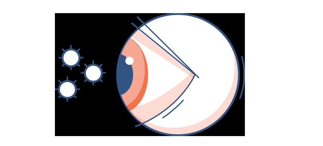 Eye Allergy Illustration.