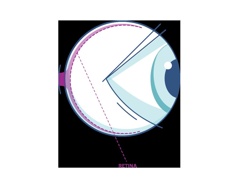 Illustration showing the eye's Retina.